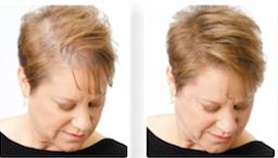 Rzadkie Włosy Zagęszczanie Włosów Cienkie Włosy
