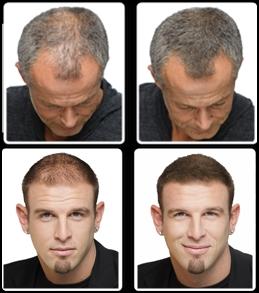 Focus Gęste Włosy W Mniej Niż 30 Sekund Meskiewłosypl