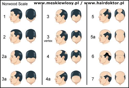 Skala Norwood A Stopień łysienia Typu Męskiego